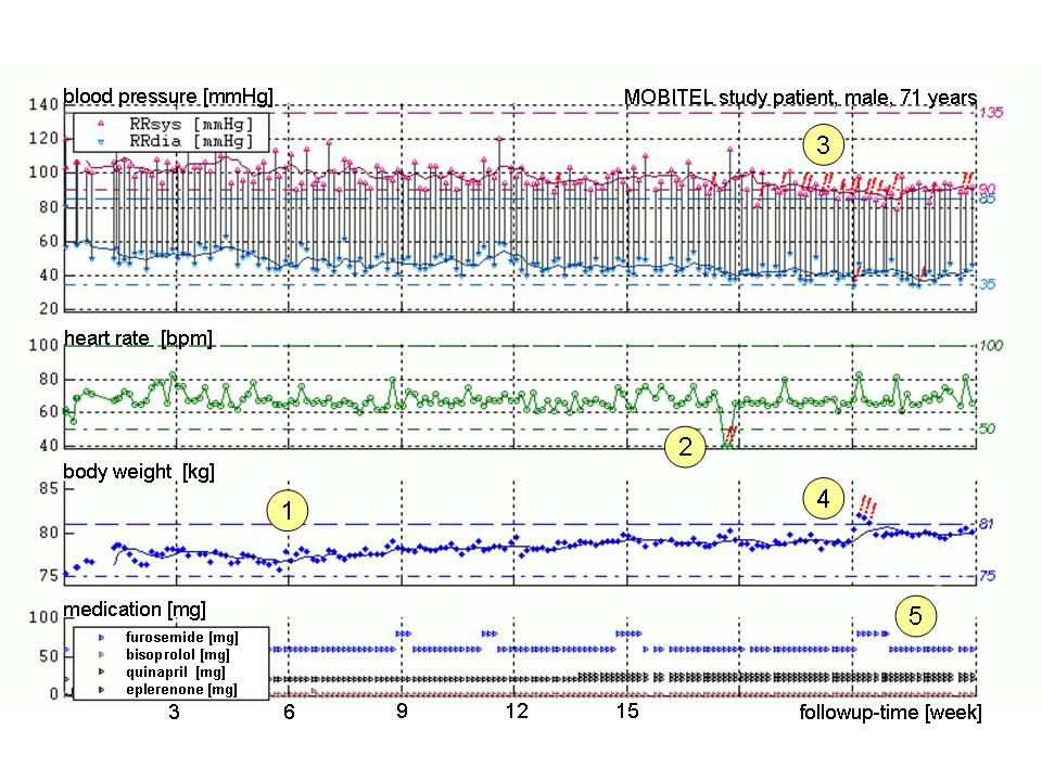 blood pressure chart. diastolic lood pressure